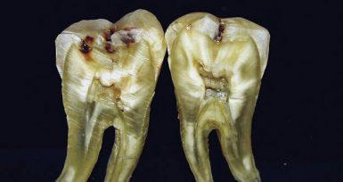 Ototransplantasyon: Diş Nakli Mümkün Mü?